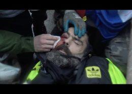 VIDEO: Vůdce žlutých vest byl vážně zraněn. Západ mlčí.