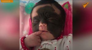 VIDEO: Americkou holčičku budou léčit v Rusku
