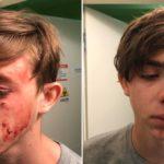 NÁSILÍ: V Krnově byl brutálně napaden 15-letý mladík
